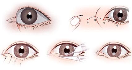 mở rộng hốc mắt